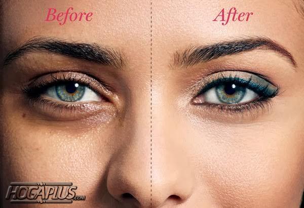15 Ways to Get Rid of Dark Circles Under The Eyes. how to get rid of dark circles permanently at home?how to get rid of dark circles permanently naturally?