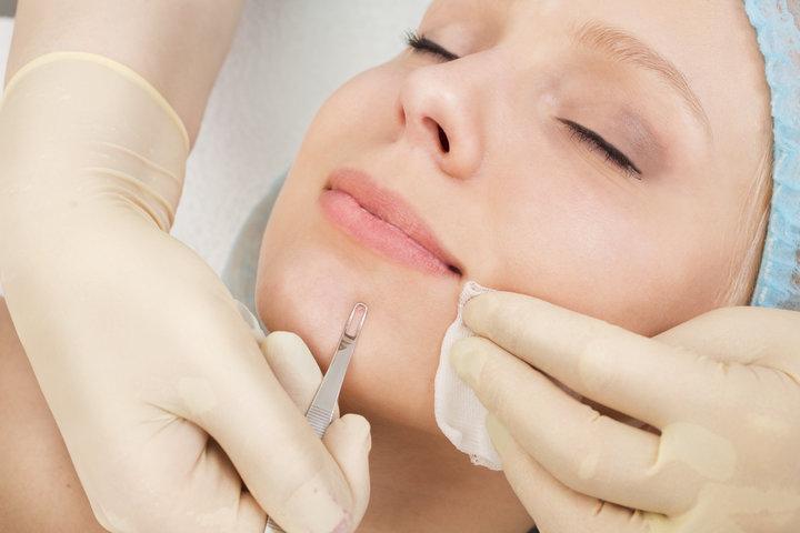 Skin Blackhead Remoal Tips